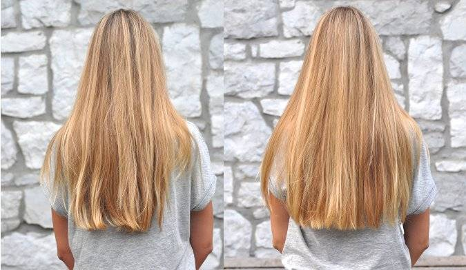 La chute des cheveux chez les femmes des nerfs